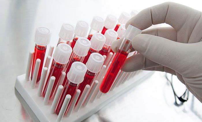 analize-de-sange